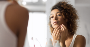 Skincare tips for acne-prone skin